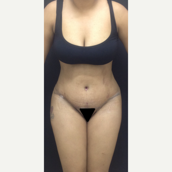25-34 year old woman treated with Tummy Tuck after 3341247