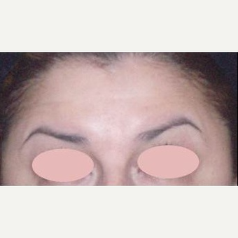 45-54 year old woman treated with Botox after 3089294