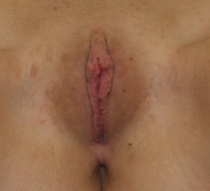 Labiaplasty after 935001