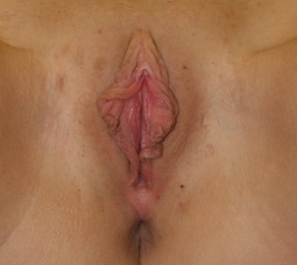 Labiaplasty before 935001