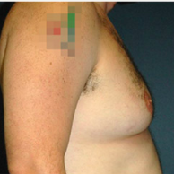 34 year old man treated with Male Breast Reduction before 3720908