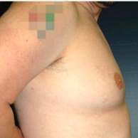 34 year old man treated with Male Breast Reduction after 3720908