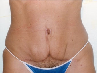 Tummy tuck disaster is saved by secondary pull