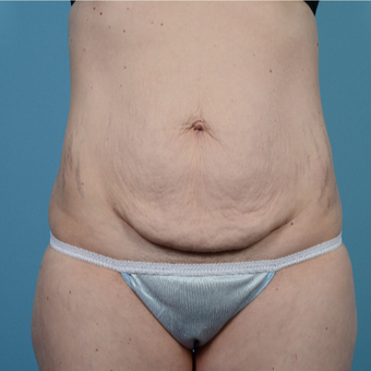 35-44 year old woman treated with Tummy Tuck before 3098298