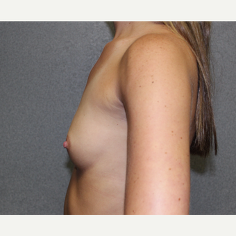 Breast Augmentation before 3370175