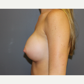 Breast Augmentation after 3370175