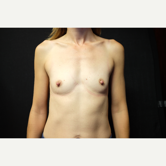 35-44 year old woman treated with Breast Implants before 3724551