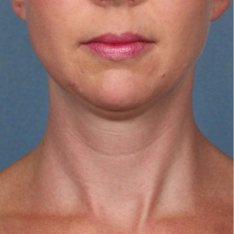 35-44 year old woman treated with Kybella before 2224857