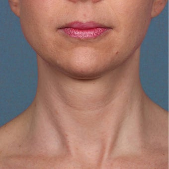 35-44 year old woman treated with Kybella after 2224857