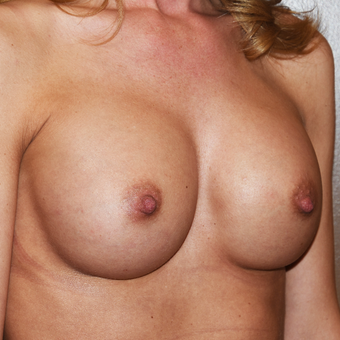 25-34 year old woman treated with Breast Implants after 3496761