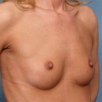 25-34 year old woman treated with Breast Implants before 3496761