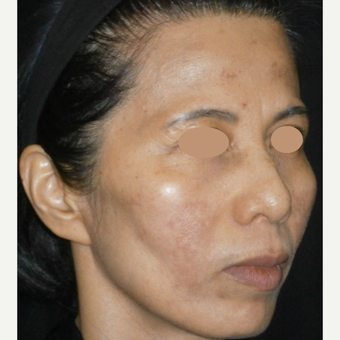 45-54 year old woman treated with Laser Treatment after 3089570