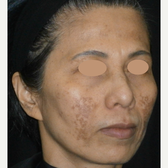 45-54 year old woman treated with Laser Treatment before 3089570