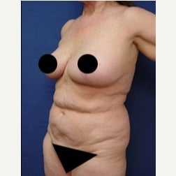 65-74 year old woman treated with Tummy Tuck before 2067181