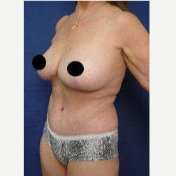 65-74 year old woman treated with Tummy Tuck after 2067181