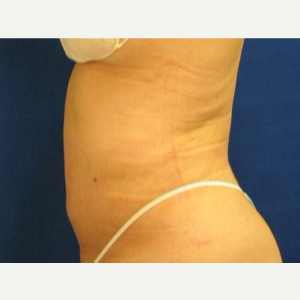 45-54 year old woman treated with Liposuction after 3163329