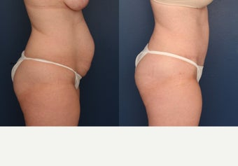 45-54 year old woman treated with Tummy Tuck before 3699276