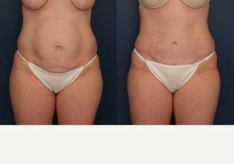 45-54 year old woman treated with Tummy Tuck after 3699276