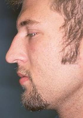 Male Rhinoplasty 979805