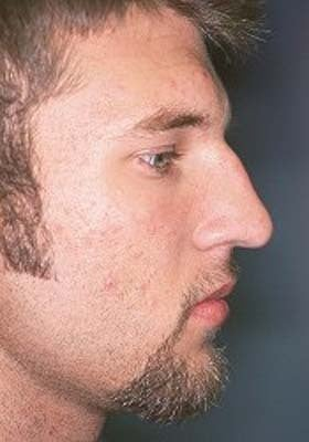 Male Rhinoplasty before 979805