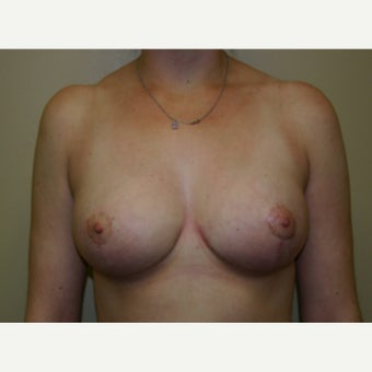 25-34 year old woman treated with Breast Reduction after 1556172