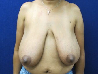 45 year old female with anchor scar breast reduction before 970799