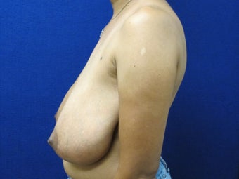45 year old female with anchor scar breast reduction 970799