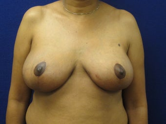45 year old female with anchor scar breast reduction after 970799