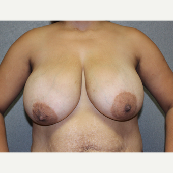 Bilateral Breast Reduction before 3487142