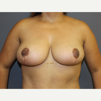Bilateral Breast Reduction after 3487142