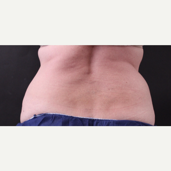 62 year old woman treated with CoolSculpting after 3221073