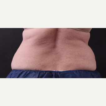 62 year old woman treated with CoolSculpting before 3221073