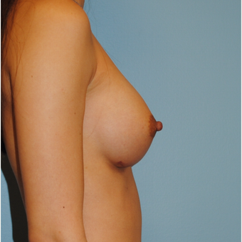 28 year old woman treated with Breast Implants, 330 cc high profile filled to 330 cc after 3731450