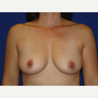 Breast Augmentation with 425 cc Silicone Implants before 3447642