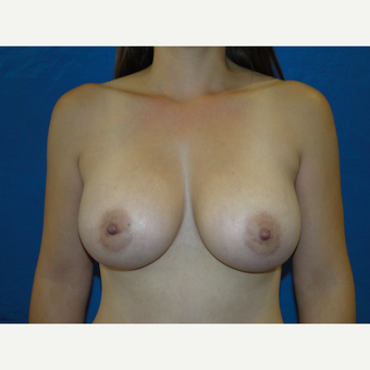 Breast Augmentation with 425 cc Silicone Implants after 3447642