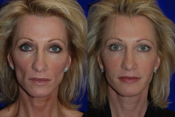 Juvederm Voluma  before 1376642