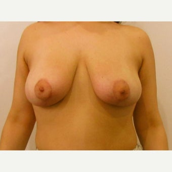 20 year old woman treated with lollipop incision Breast Reduction after 2625948