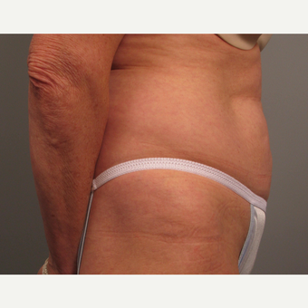 55-64 year old woman treated with Tummy Tuck before 3382617