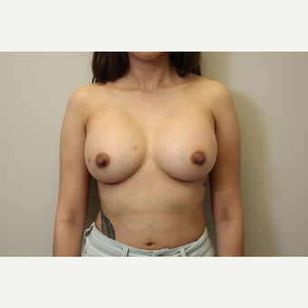 34 year old woman treated with Breast Augmentation after 3699783