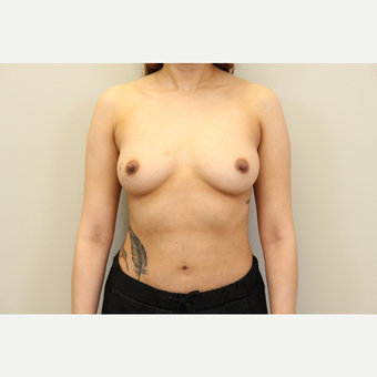34 year old woman treated with Breast Augmentation before 3699783