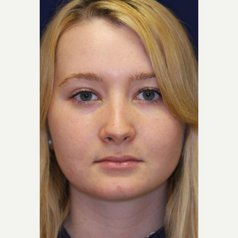 18-24 year old woman treated with Revision Rhinoplasty after 3219816