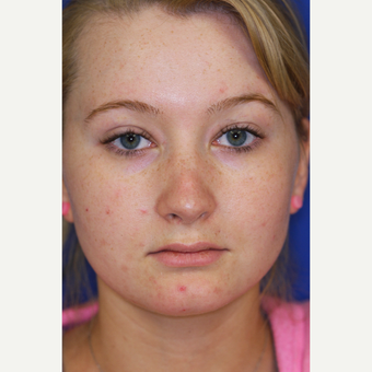18-24 year old woman treated with Revision Rhinoplasty before 3219816