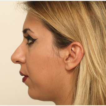 25-34 year old woman treated with Rhinoplasty before 3406444