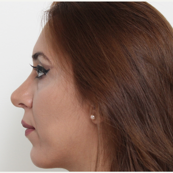 25-34 year old woman treated with Rhinoplasty after 3406444
