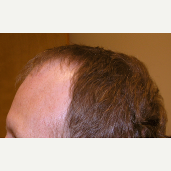 35-44 year old man treated with Hair Transplant before 3181339