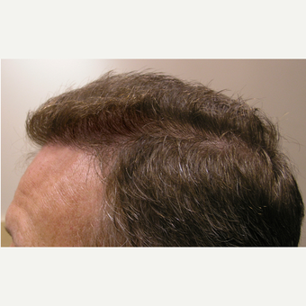 35-44 year old man treated with Hair Transplant after 3181339