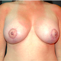 30 year old woman treated with Breast Lift with Implants after 3665834