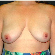 30 year old woman treated with Breast Lift with Implants before 3665834