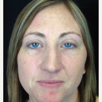 25-34 year old woman treated with Rhinoplasty before 3525983