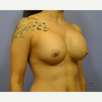 25-34 year old woman treated with Breast Augmentation before 3329374